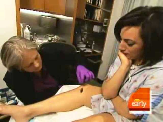 Demi Moore leech therapy