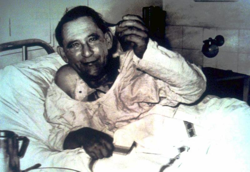 Recepient of First Heart Transplant of The World Lewis Washkansky